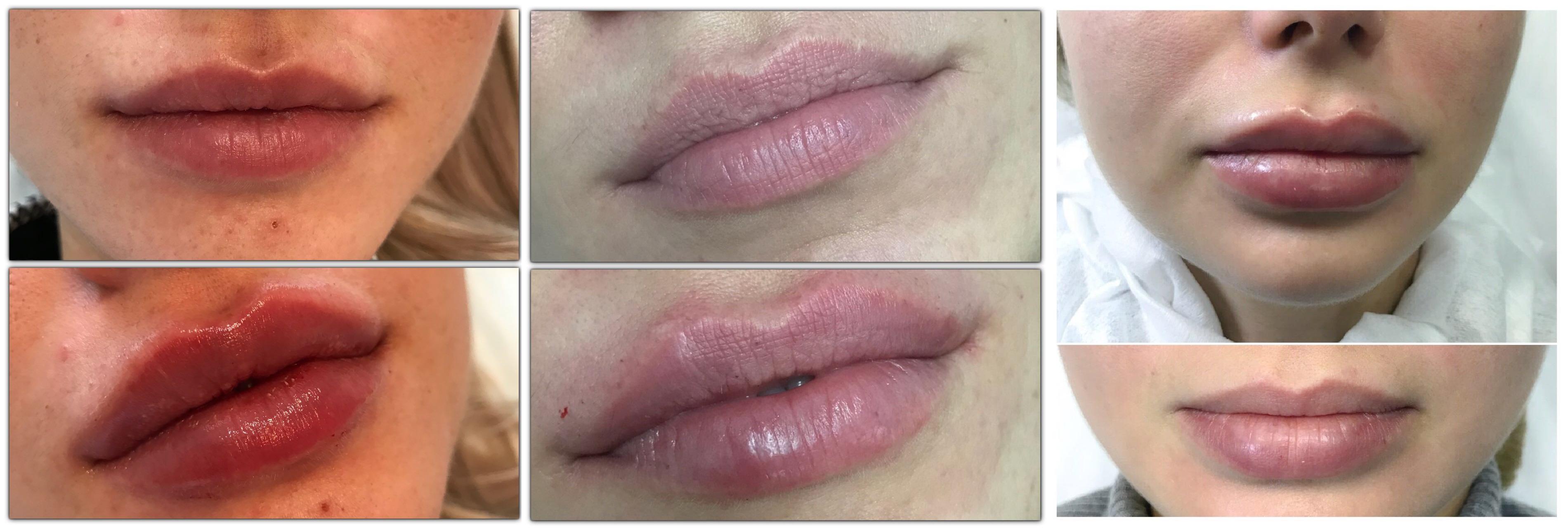 Как сделать складки на губах
